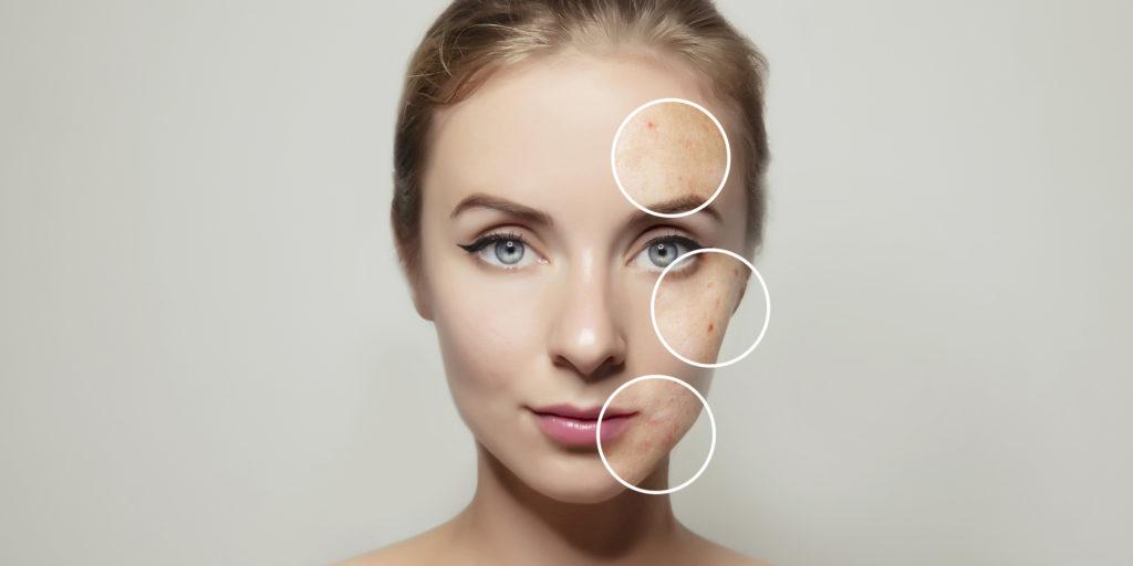 Cómo cerrar los poros abiertos de la nariz